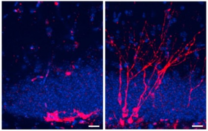 Mice lacking a protein called DKK1 develop more new neurons (right) compared with controls (left).